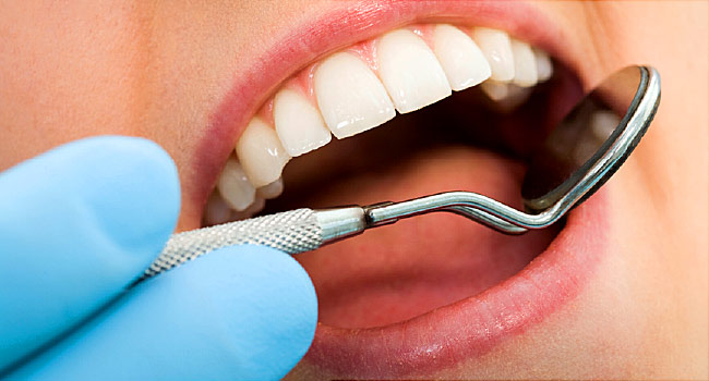 dental implant in Lake Mary